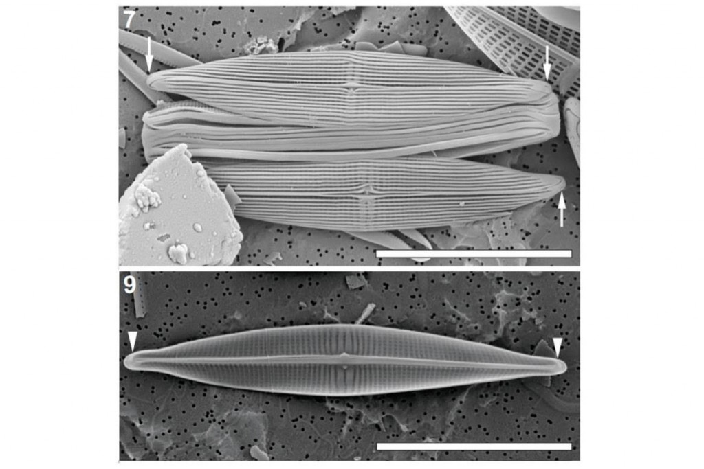 The Browder diatom (Proschkinia browderiana).